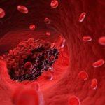 Caillots sanguins: risques pour le chien